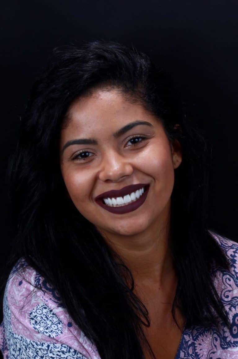 Lentes de contato dental - Royal odontologia