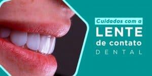 Cuidados com a lente de contato dental - Royal Odontologia