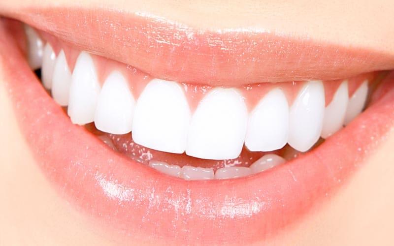 5 dicas para quem faz clareamento dental
