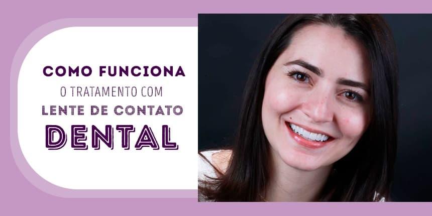 Como funciona o tratamento com lente de contato dental - Royal Odontologia